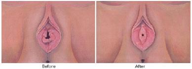 himenoplastika-aesthete-Poliklinika Aesthete zagreb - Plastična kirurgija - Estetski zahvati i tretmani kože, lica i tijela