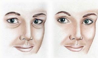 obrve-Poliklinika Aesthete zagreb - Plastična kirurgija - Estetski zahvati i tretmani kože, lica i tijela
